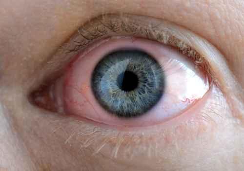 glaucoma clinica oftalmologica madrid