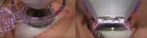 cirugia laser lasik -3