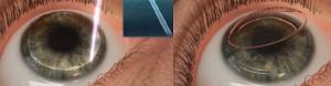 cirugia laser lasik -4