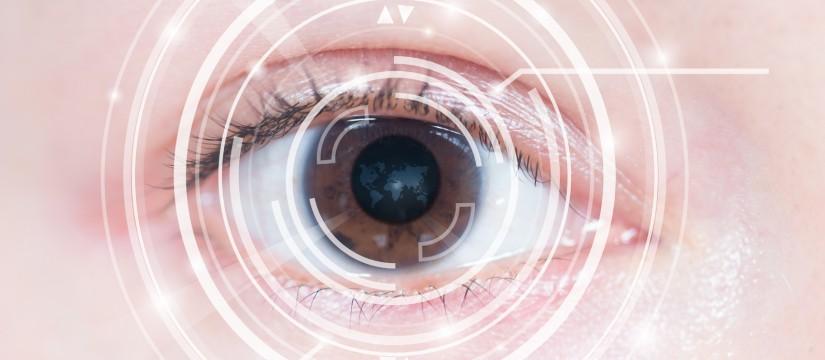 cirugia laser lasik