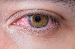 clínica oftalmológica Real Visión 6 hábitos realmente perjudiciales para tus ojos