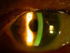 Glaucoma clínica oftalmológica madrid 2