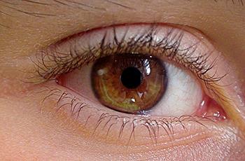 cirugía retina real visión