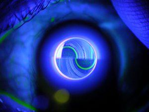Glaucoma clínica oftalmológica madrid 3