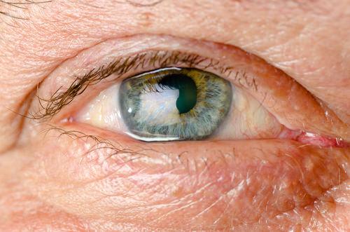 Los 10 puntos más importantes sobre tu cirugía de cataratas - Real Visión