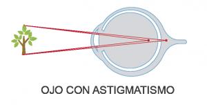 Visión de ojo con astigmatismo - Real Visión