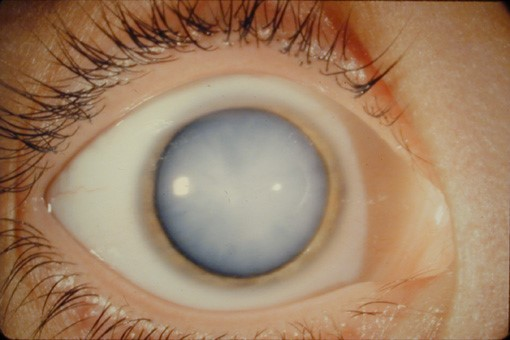 ojo con cataratas - clinica real vision