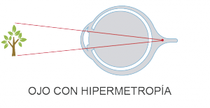 Clínica oftalmológica Madrid - Hipermetropía