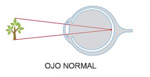 ojo vista normal - real vision