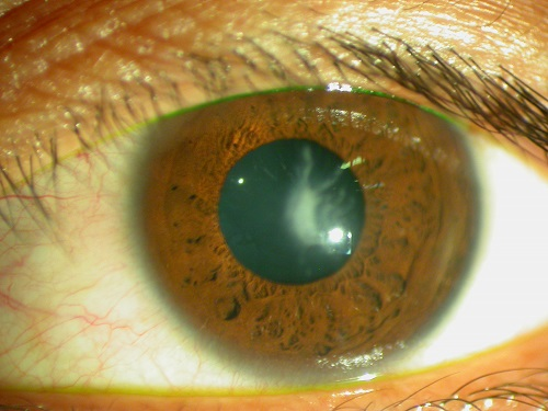 solución del queratocono - Anillos Intraestomales - Clínica oftalmológica en Madrid
