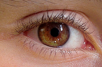 desprendimiento del vítreo posterior - Retina y vítreo - Clínica oftalmológica Madrid