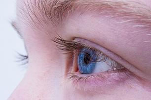 trasplante de cornea - real vision